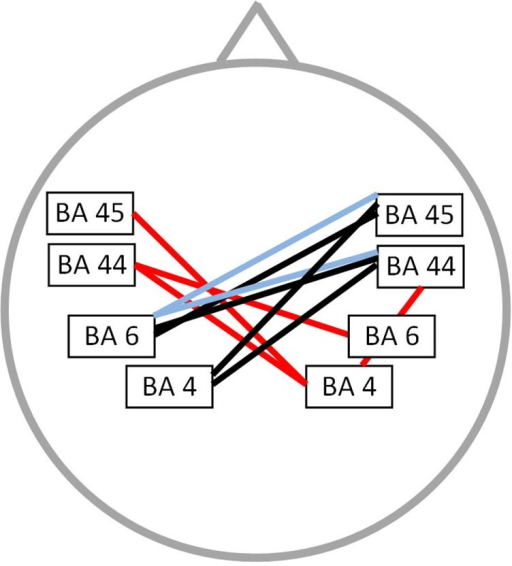 Connectivity differences between PWS and fluently speaking controls. Decreased functional connectivity (p < 0.01) in the beta 1 frequency band (red lines), beta 3 frequency band (bleu lines) and gamma frequency band (black lines) in stuttering patients vs. fluently speaking controls.