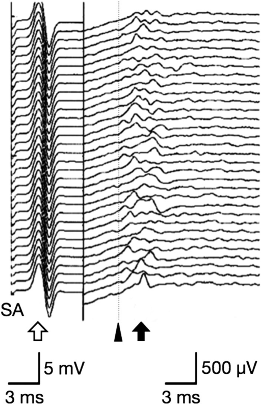 M responses (outlined arrow) and the F-waves (solid arrow) recorded from ulnar nerveof clinically normal beagle. Recording sensitivity differs between M response andF-wave. F-wave form and latency varied. Shortest F-wave latency (black triangle) isfrom stimulus artifact (SA) to first deflection of F-wave among 32 stimuli.