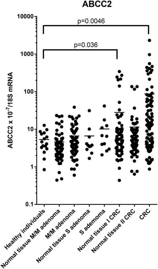 ABCC2 mRNA levels in morphologically normal and affected tissues normalised to 18S RNA levels.P-values for comparison of the expression levels to the level in healthy controls adjusted for age and gender are indicated.M/M, mild-to moderate dysplasia; S, severe dysplasia; Normal tissue I, morphologically normal distant tissue; Normal tissue II, morphologically normal adjacent tissue. Horizontal bars indicate mean. mRNA expression levels were log-transformed.