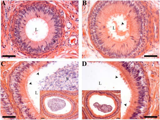 Apical blebbing morphology.A 11 week corpus tubule, B 16 week corpus tubule, C 20 week corpus, inset is lower magnification of same tubule, D 40 week corpus, inset is lower magnification of same tubule. Note apical blebbing is evident in both the 20 and 40 week samples (arrowheads); 16 week samples have fewer blebs and this 11 week corpus section has none. L = lumen, S = sperm, scale bars are 5 μm.