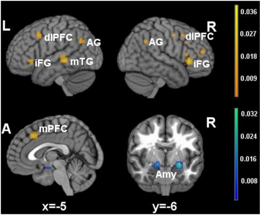 Brain activity in reappraisal tasks. In warm colors significant cluster of increased brain activity, in cold colors significant clusters of decrease brain activity. mPFC, medial prefrontal cortex; dlPFC, dorsolateral prefrontal cortex; iFG, inferior frontal gyrus; mTG, middle temporal gyrus; AG, angular gyrus; Amy, amygdala.