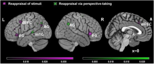 Brain activity in reappraisal of stimuli and reappraisal via perspective-taking. In violet increased brain activity during RS; in green increased brain activity during reappraisal via perspective-taking. mPFC, medial prefrontal cortex; dlPFC, dorsolateral prefrontal cortex; iFG, inferior frontal gyrus; mTG, middle temporal gyrus; AG, angular gyrus.