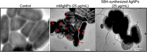 Examination of mfAgNPs internalization into PAO1 cells by TEM.Red arrows indicate the accumulation of mfAgNPs inside the cells.