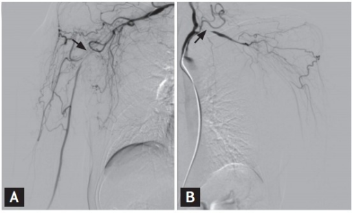 Arteriography of both upper extremities. Severe stenosis is evident in the right subclavian and axillary arteries (A, arrow), and in the left subclavian artery, with reduced blood flow distal to the lesion (B, arrow).