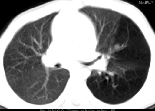 Axial CT of the lungs demonstrates left-sided vascular pruning with associated loss of parenchymal density.