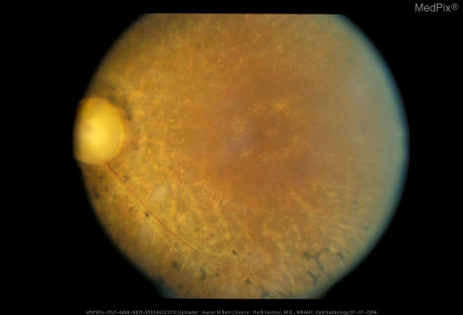 This photograph of the posterior pole shows the triad of bone spicule pigmentation, waxy pallor of the optic disc, and marked arteriolar attenuation.