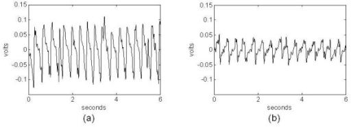 Example of piezoelectric signals corresponding to sleep from 2 different mice showing quasi-periodicity with (a) High-amplitude and (b) Low-amplitude.