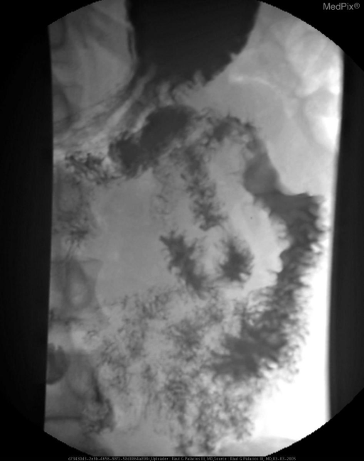 Digital fluroscopic images of the small bowel follow through demonstrate loss of the normal mucosal fronds of the jejunum in the left upper quadrant associated with abnormal separtation of the bowel loops and loss of normal compressibility of the bowel loops on examination.
