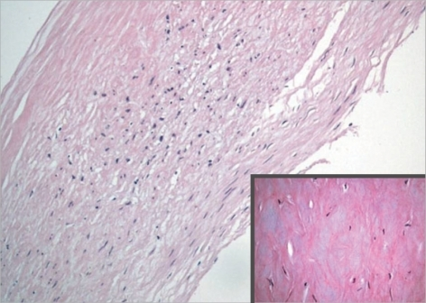 The microscopic image showed fibromyxoid degeneration (H&E stain; magnification×100, ×400 in small box).