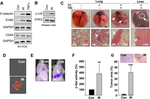 Total body irradiation triggers tumor cell extravasation and lung metastasis in vivo.A: Balb/c mice were irradiated (IR) with 6 Gy. 4 h after total body irradiation (TBI) mRNA expression of cell adhesion molecules was analyzed in large blood vessels from pulmonary and abdominal artery by RT-PCR. GAPDH mRNA expression was measured as internal loading control. As a positive control, isolated blood vessels were incubated with TNFα (10 ng/ml, 30 min, 37 oC). B: Balb/c mice were subjected to TBI (6 Gy). 4 h after radiation (IR), phosphorylation of NF-κB inhibitor IκBα (p-IκBα), which is indicative of activation of NF-κB, was analyzed in liver extracts by Western blot analysis. ERK2 protein expression was determined as internal loading control. C: 2×106 CHO-K1 cells were injected into the tail vein of immunodeficient Rag2−/− Balb/c mice. Immediately after injection, mice were irradiated (4 Gy) (TBI). 3–4 weeks after TBI, the formation of metastases was analyzed in lung and liver. TC, tumor cells injected; TBI, total body irradiation. Shown are representative morphological and histopathological pictures (2–4 animals were analyzed per group). D: Red fluorescent protein overexpressing CHO-K1 cells were used for injection into the tail vein of immunodeficient Rag2−/− Balb/c mice. Formation of lung metastases was analyzed 3–4 weeks after TBI with 4 Gy. Con, non-irradiated control; IR, TBI with 4 Gy. Shown are representative pictures (2–3 animals were analyzed per group). E: Four weeks after i.v. injection of luciferase overexpressing CHO-K1 cells followed by TBI (4 Gy), luciferase activity in the lung was monitored by use of a life imaging instrument as described in Methods. Shown are representative pictures (2–3 animals were analyzed per group). F: 3–4 weeks after i.v. injection of β-galactosidase (β-Gal) overexpressing CHO-K1 cells followed by TBI (4 Gy), relative β-Gal activity in lung extracts of irradiated mice was related to that of non irradiated control mice, which was set to 100%. **p≤0.01 (n = 4–8 mice). G: Formation of lung metastasis was quantitated in the lung of irradiated versus non-irradiated mice by calculating the % tumor area as related to the total lung area. Con, non-irradiated control; IR, TBI with 4 Gy. ***p<0.001 (n = 4–8 mice).