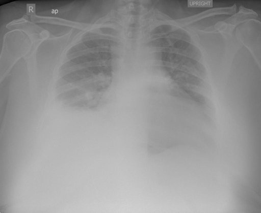 AP and lateral chest radiograph dated XXXX XXXX hours