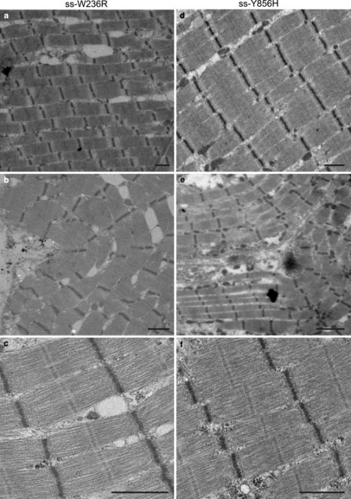 "Transmission electron micrographs of the skeletal biopsy samples. Low and medium magnification overview of myofibrillar and sarcomeric ultrastructure of a–c ss-W236R and d–f ss-Y856H. a, d show micrographs of regions with well-aligned and straight myofibrils; b, e EM of myofibrils showing a ""bent"" appearance; c, f EM micrographs of sarcomeres with good visual structure showing well-defined M-bands and Z-discs. Bar = 1 μm"