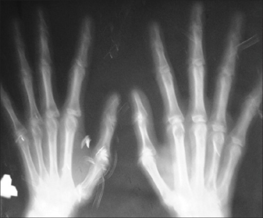Arachnodactyly with high metacarpal index MCI