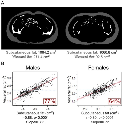 Relationships of VF with SF in adolescent males and females.A) Magnetic resonance images of analyzed umbilical slices in 2 individuals with similar subcutaneous fat and different visceral fat. B) Univariate correlations between of VF with SF are shown in adolescent males and females.