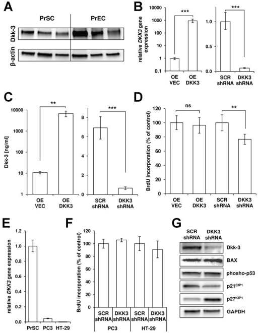DKK3 knockdown reduces PrSC proliferation and induces p27KIP1 levels. A: Western blot analysis of total cell lysates of primary prostatic stromal (PrSC) and epithelial (PrEC) cells isolated from three individual donors revealed significant Dkk-3 expression in both cell types. β-actin served as loading control. B: DKK3 mRNA levels after lentiviral-delivered overexpression (OE DKK3) compared with empty vector control virus (OE VEC) and lentiviral-delivered DKK3 specific shRNA (DKK3 shRNA) compared with scrambled control (SCR shRNA) as determined by qPCR 72h post-transduction of PrSCs (overexpression: n = 4; shRNA: n = 5). DKK3 gene expression levels were normalized using the housekeeping gene HMBS and are shown relative to controls. C: Secreted Dkk-3 protein levels in PrSCs after overexpression and knockdown of DKK3 (n = 4). D: DKK3-shRNA significantly reduced cellular proliferation of PrSCs determined by BrdU-incorporation ELISA at day 6 post-transduction (n = 5). E: DKK3 mRNA levels of PC3 (n = 3) and HT-29 cells (n = 3) compared with PrSCs (n = 5). F: Cellular proliferation of PC3 and HT-29 cells as determined by BrdU-incorporation ELISA at day 6 post-transduction with DKK3-shRNA compared with SCR-shRNA, respectively (n = 3). G: Western blot analysis of apoptosis-related proteins (BAX, phospho-p53) and the cyclin-dependent kinase inhibitors p27KIP1 and p21CIP1 in DKK3-shRNA and SCR-shRNA PrSCs 72 hr post-transduction. GAPDH served as loading control.