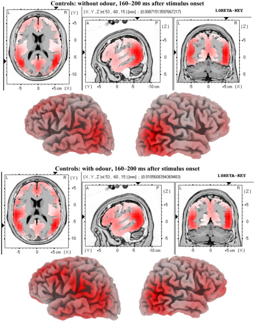 LORETA solutions for the early odour-related effect in controls. Maximum brain activity difference between odour versus no-odour can be seen at the left fronto-temporal area.