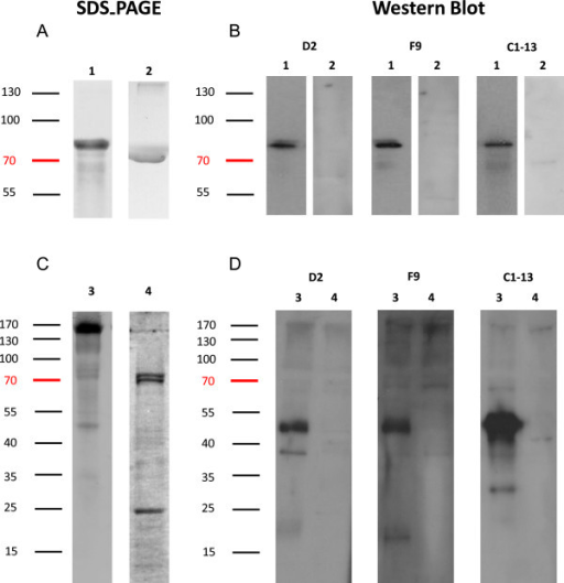 Western blot analysis for the binding specificity of mAbs against recombinant and native PfHRP2 proteins. A: Separation of recombinant PfHRP2 and 1% BSA proteins in 10% reduced SDS-PAGE, and stained with Coomassie Blue; B: Hybridization of corresponding recombinant mAbs D2, F9, and C1-13 to rPfHRP2 (1 μg/mL) and 1% BSA in Western blot. C: Separation of native malaria parasite protein and uninfected RBC by10% SDS-PAGE, stained with Coomassie Blue. D: hybridization of corresponding recombinant mAbs D2, F9, and C1-13 to malaria native protein (1 μg/mL) and uninfected RBC protein (1 μg/mL)in Western blot. Lane 1: recombinant HRP2 protein; Lane 2: negative control 1% BSA. Lane 3: P. falciparum-infected RBC protein; Lane 4: negative control uninfected RBC protein. Molecular weights are shown at the left corner of the diagram.
