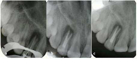 a: Working length determination X-ray b: Post obturation radiograph c: Six months follow-up radiograph