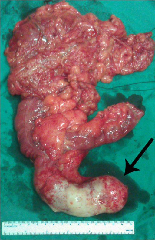 Resected specimen. Resected specimen showing giant mucinous cystadenoma of the appendix (arrow).