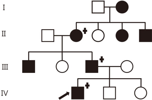 "Family pedigree with familial neurophyseal diabetes inspidus in four generations. The black symbols indicate an affected subject; females are indicated by circles and males by squares. The arrow indicates the proband. Genetically tested individuals are indicated by the ""+"" symbol."