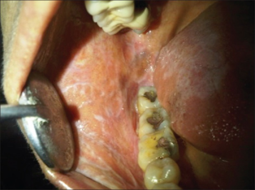 A more classical oral lichen planus (OLP) like presentation in another case with proximity to amalgam restorations