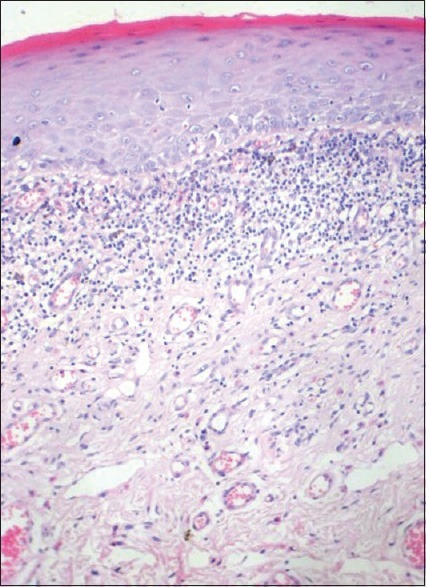Histopathological image of biopsy from case 1 showing a more OLP like presentation (H and E, ×10)
