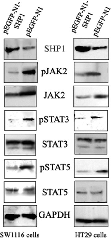 The affects of SHP1 expression on JAK2/STAT3/STAT5 protein levels in CRC cells. CRC cells transfected with pEGFP-N1 or pEGFP-N1-SHP1 were sorted for GFP expression and extracts analysed by Western blot. Substantial decreases in expression of pJAK2, JAK2, pSTAT3 and pSTAT5 were detected. The decrease in pJAK2 levels was greater than that of JAK2. In contrast, no significant changes in STAT3 and STAT5 protein levels were detected. The data shown are from a representative experiment and detection of GAPDH was used as a loading control.