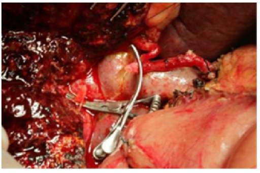 Trim the right hepatic artery proximally and distally after resection of the tumor and affected artery.