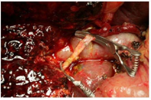 The right hepatic artery after bridging reconstruction.