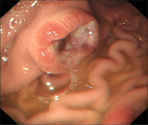 A 1.5-cm ulcerated mass on the lower body of the greater curve of the stomach.