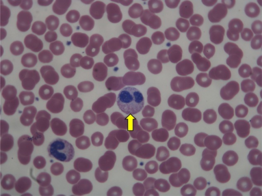 Pseudo-Pelger-Huët; neutrophils show bi-lobed nuclei with thin filament (in the center) and the indented or bilobed variant without thin filament (lower left)-this form is commonly misinterpreted as bands.
