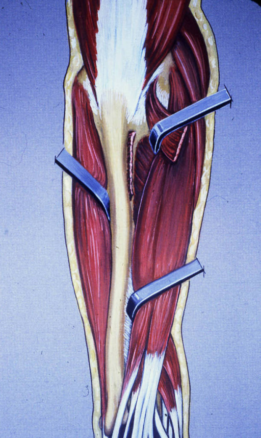 ulna; forearm muscles; forearm tendons