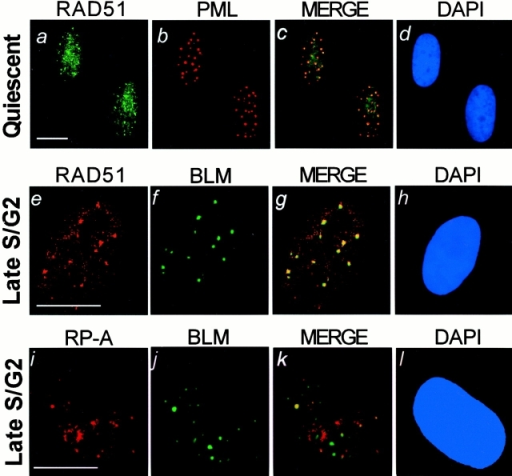 BLM, PML, hRAD51, and RP-A localization in cells in G0 or late S/G2. WI-38 cells were made quiescent (Quiescent), or released from a G1/S arrest for 8 h (Late S/G2). Cells were stained for BLM, PML, hRAD51, or RP-A, nuclei were visualized (DAPI), and fluorescent images were superimposed (MERGE) as described in the legend to Fig. 1. (a–d) hRAD51 and PML localization in quiescent cells. (e–h) hRAD51 and BLM localization in cells in late S/G2. (i–l) RP-A and BLM localization in cells in late S/G2. Bars, ∼10 μm.