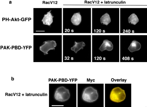 Actin polymerization is necessary for Rac-dependent PI(3,4,5)P3 accumulation. (a) Spatial distribution of PH-Akt-GFP (top) or PAK-PBD-YFP (bottom) in cells expressing RacV12 before and after exposure to latrunculin B (20 μg/ml) for the indicated times. (b) PAK-PBD-YFP and myc-tagged RacV12 show persistent colocalization at the membrane even after treatment with latrunculin B for 10 min. Bars, 10 μm.