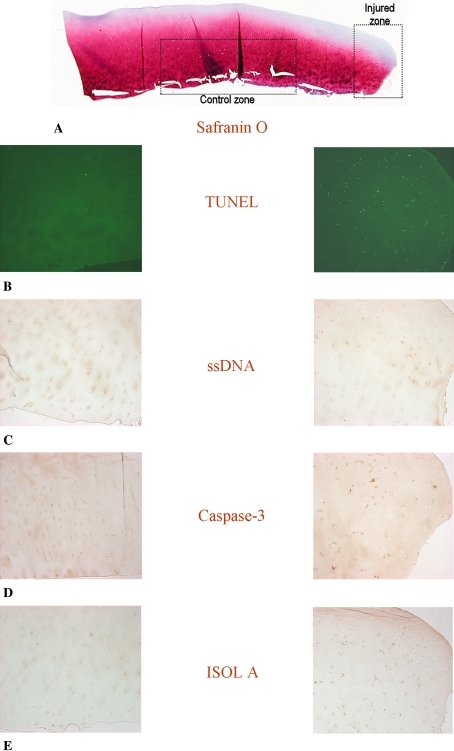 Photomicrographs (Stain, Safranin O (A) and DAB primary antibody staining with Fast Green counter stain (B–E); original magnification, ×10) compare (A) the injured zone and the control zone in (B) TUNEL, (C) ssDNA, (D) anti-active caspase-3, and (E) ISOL. The break in the cartilage is to the right of the injured zone images. TUNEL = terminal deoxynucleotidyl transferase end labeling; ssDNA = DNA denaturation analysis using anti single-stranded DNA antibody; ISOL = in situ oligonucleotide ligation.