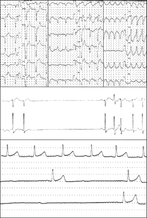 Electrocardiogram in myasthenia gravis patients with anti-Kv1.4 antibodies. (a) Ventricular tachycardia, (b) sick sinus syndrome, and (c) complete atrial ventricular block.