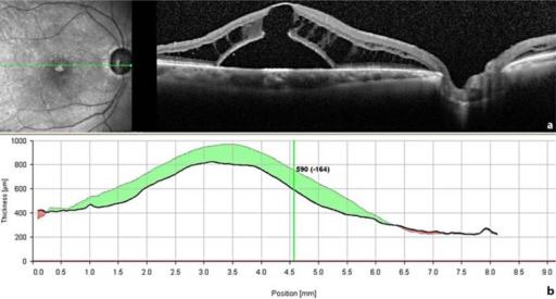 An SD-OCT scan through the fovea taken 4 weeks after the first surgical procedure (pars plana vitrectomy and ILM peeling) (a) shows a slight reduction of the inner retinal cysts near the disc, whereas the outer layer schisis-like separation and the retinal detachment did not improve. Moreover, an outer layer macular hole developed beneath the schisis. The decrease in central retinal thickness of 164 μm (b) is rather due to a displacement of the fluid than to reabsorption of it.