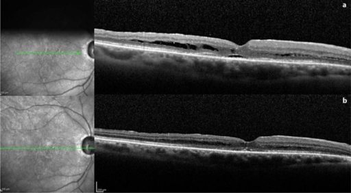 After revision of vitrectomy with gas tamponade, an SD-OCT scan of the same point made 1 week postoperatively (a) shows complete resolution of the retinal detachment and of the schisis-like separation of the outer layer, with a restitutio ad integrum of the foveal depression and of the external hyperreflective bands. A minimal amount of cystic fluid persists in the parafoveal outer layer, which could no longer be detected at 1 month (b).