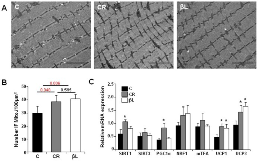 age associated decreased activities of mitochondrial electron Role of mitochondrial dysfunction in dry age-related macular degeneration  and electron transport chain  dry amd phenotype associated with hq-induced.