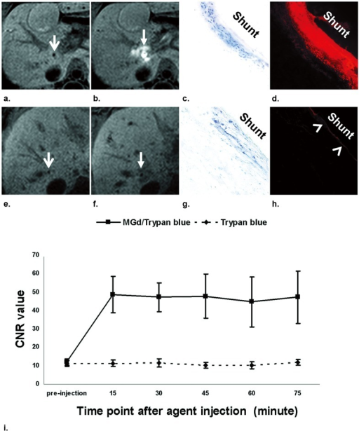 In vivo MRI with subsequent histology confirmations of intra-TIPS delivery of MGd/trypan-blue mixture (a–d) and trypan-blue only (e–h).MRI manifests the TIPS shunts before intra-TIPS local deliveries of MGd/blue mixture (arrow on a) and trypan-blue only (arrow on e), and the MGd distribution around the shunt (arrow on b) as bright signal after intra-TIPS agent delivery of MGd/blue, which is not seen on MRI with intra-TIPS delivery of trypan-blue only (arrow on f). Histological images confirm the successful penetration of trypan-blue (as blue stain on c) and MGd (as red fluorescent spots on d) in the shunt - hepatic vein wall with delivery of MGd/blue, while in the control group with delivery of trypan-blue (g and h), only trypan-blue stain (g) is visualized within the shunt - hepatic vein wall with weak autofluorescence of the intima (arrowhead on h). (Original magnification, ×20). Time-CNR curves of each animal group (i), showing that CNR increases immediately after MGd/blue delivery and remains at a high level within 75 minutes in the MGd/blue-treated group, while in the control group, the CNR does not increase after the trypan blue-only delivery.