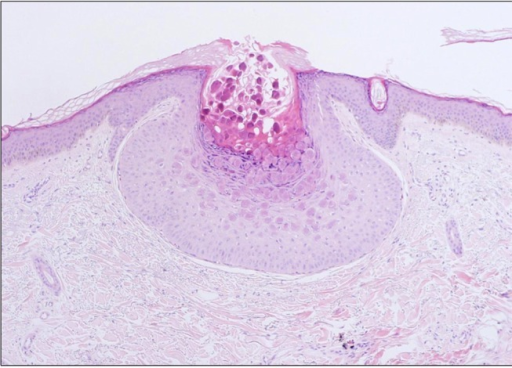 Epidermal cells bearing large eosinophilic cytoplasmic inclusion bodies, typical of the molluscum body (H&E, ×100).