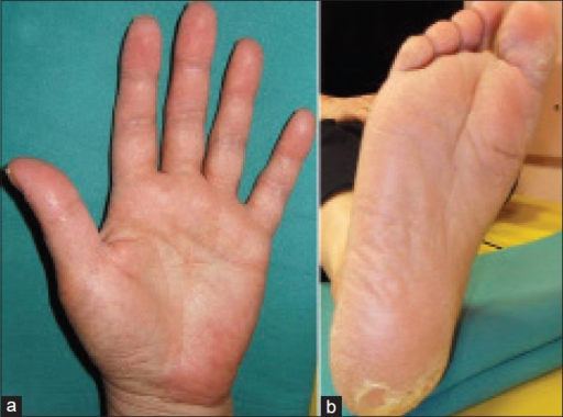 (a and b) Palmoplantar erythema, desquamation and fissuring