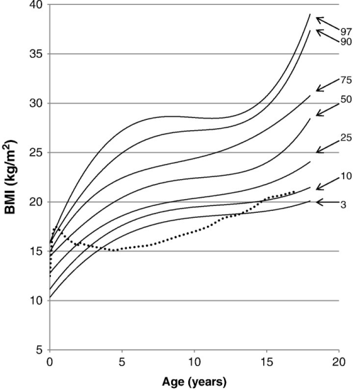 BMI curve for patients with MPS II from birth to 18 years of age. The dotted line shows the mean BMI for healthy males. The solid line shows BMIs for patients with MPS II. Arrows point to their respective percentile curves.