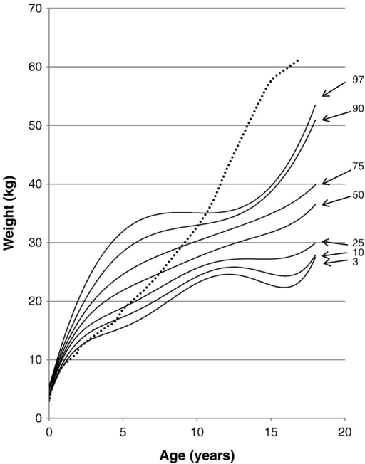 Weight curve for patients with MPS II from birth to 18 years of age. The dotted line shows the mean height for healthy males. The solid line shows weights for patients with MPS II. Arrows point to their respective percentile curves.