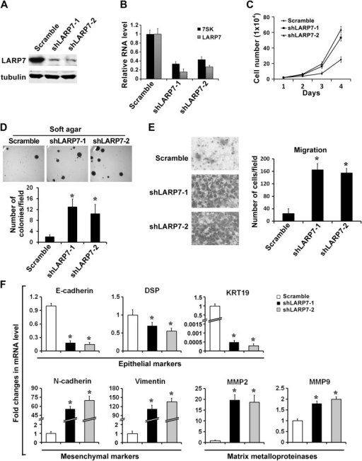 Silencing LARP7 accelerates malignant progression of BT474 breast cancer cells.(A) Western blotting analysis of LARP7 levels in BT474 control and two shLARP7 pools. (B) qRT-PCR analysis confirms the reduced RNA levels of 7SK and LARP7 in BT474 cells stably expressing shLARP7s. (C–E) Silencing LARP7 in BT474 cells results in increased cell proliferation (C), anchorage-independent growth (D), and cell migration (E). (F) qRT-PCR analysis of various EMT markers and MMPs in control and two shLARP7 pools. PCR values were normalized to that of β-actin. Data are presented as the mean ± SD from three independent measurements.DOI:http://dx.doi.org/10.7554/eLife.02907.008