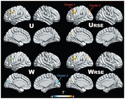 Degree comparison between the cocaine-dependent group and the control group is shown. The left lateral prefrontal cortex (cluster 1), left posterior parietal cortex (cluster 2), and visual cortex (cluster 3) show significant differences in degree metrics between the two groups (p < 0.05, FDR corrected).