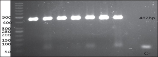 482 bp PCR product of IL-7 gene polymorphism (rs1520333). Last lane is negative control