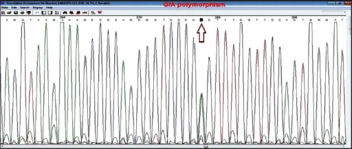 A sequencing chromatogram showing GA genotype of rs1520333 G > A