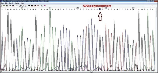 A sequencing chromatogram showing GG genotype of rs1520333 G > A
