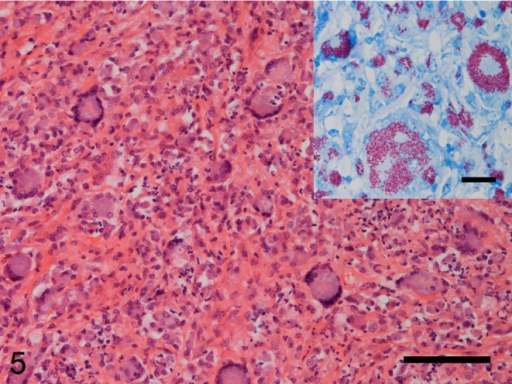 Higher magnification image of the granulomatous lesion in the cranial mesenteric lymphnode. The lesion is composed of epithelioid macrophages, multinucleated giant cells andneutrophils admixed with prominent fibrous tissue, which exhibits a sarcomatousappearance. HE. Bar=100 µm. (Inset) Numerous acid-fast staining bacilliare detected within the cytoplasm of the epithelioid macrophages and multinucleatedgiant cells. Ziehl-Neelsen. Bar=20 µm.